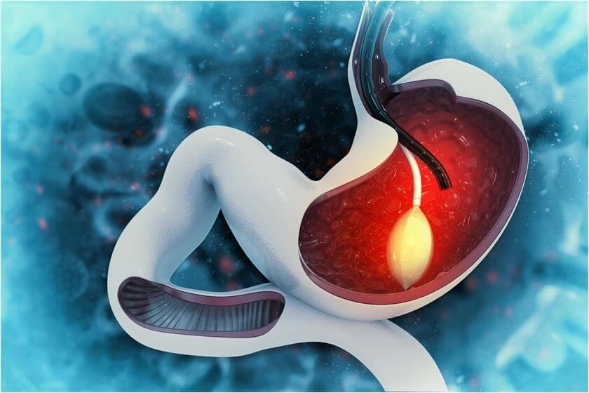 Fiber optic shape sensing for gastrointestinal